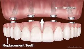 Profitable Dentures & Dental Ceramic Lab SEQ